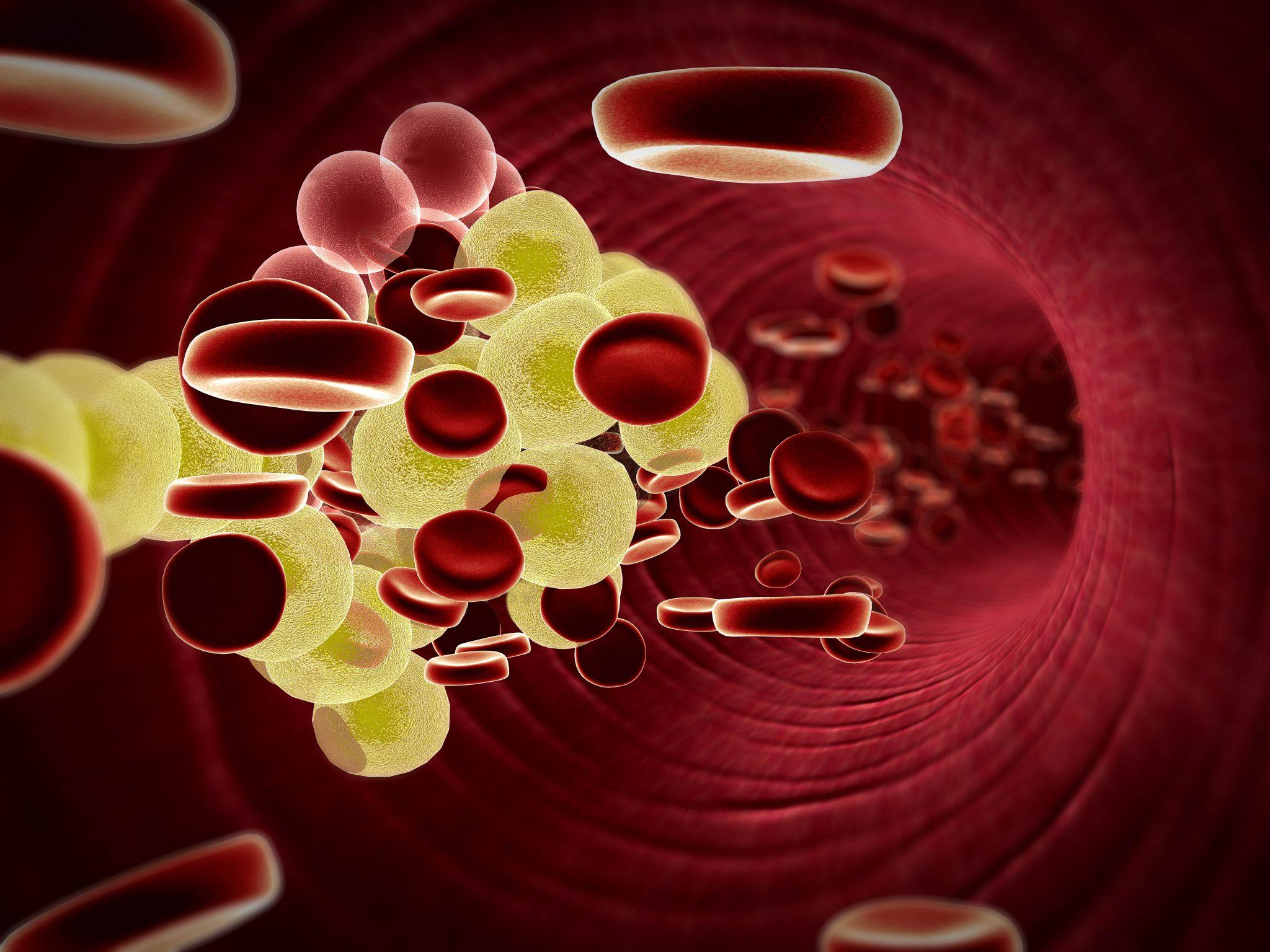 welke cholesterolverlagers zijn er